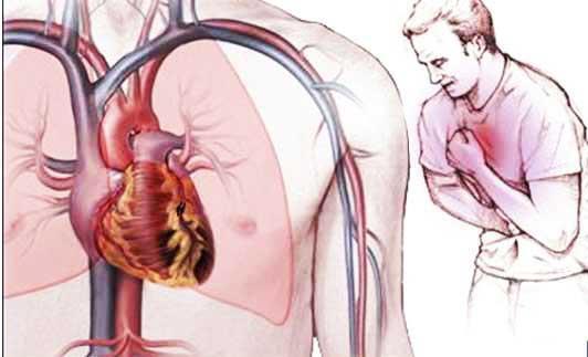 Problemi di cuore / Attacco di cuore